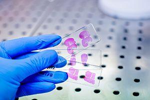 Weill Cornell Medicine Clinical Genomics